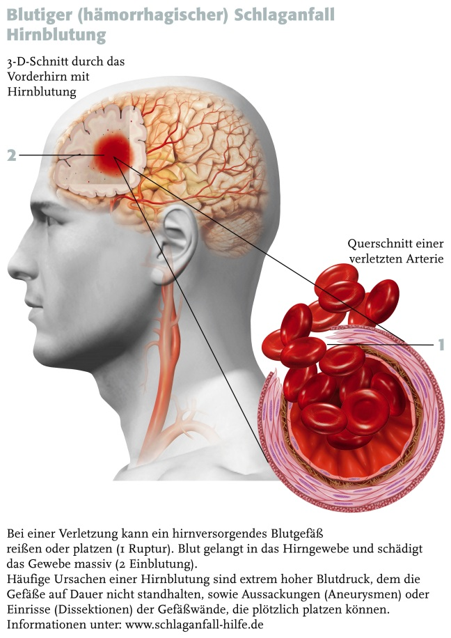 Blutiger (hŠmorrhagischer) Schlaganfall / Hirnblutung | Kontrovers